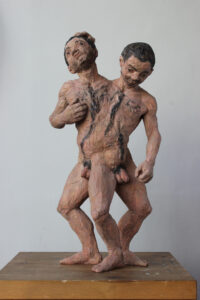 Karin Frank: Conjoined twins